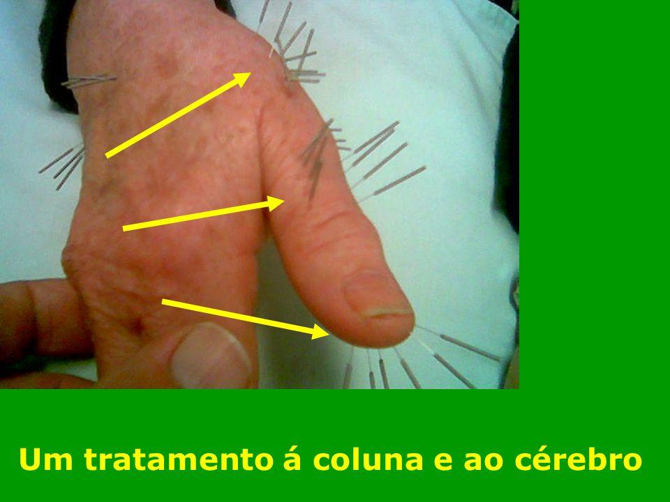 Um tratamento á coluna e ao cérebro