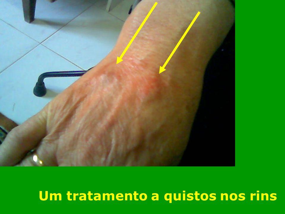 O Sistema Insecto Coração/I.D Fígado Pulmão - IG Rim Bexiga Baço - Estômago Braço / Ombro Perna / Anca Joelho Cérebro