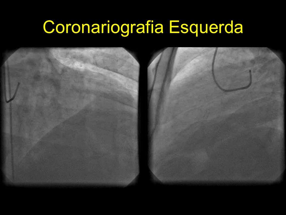Coronariografia Esquerda