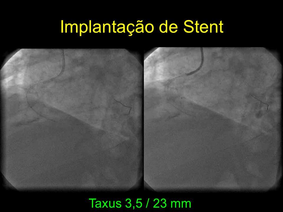Taxus 3,5 / 23 mm Implantação de Stent