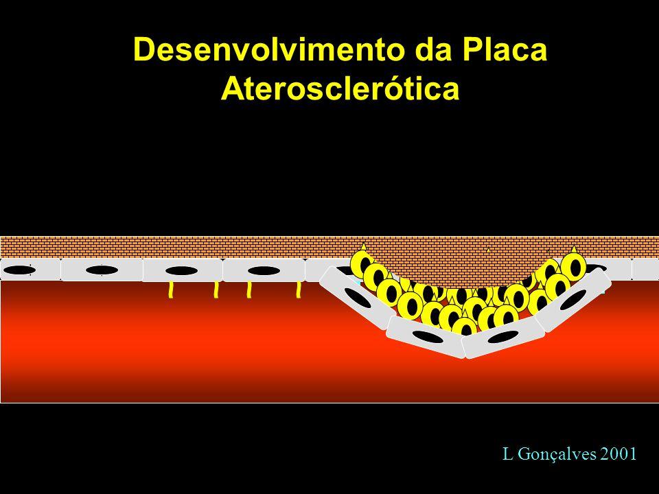 Desenvolvimento da Placa Aterosclerótica + + L Gonçalves 2001