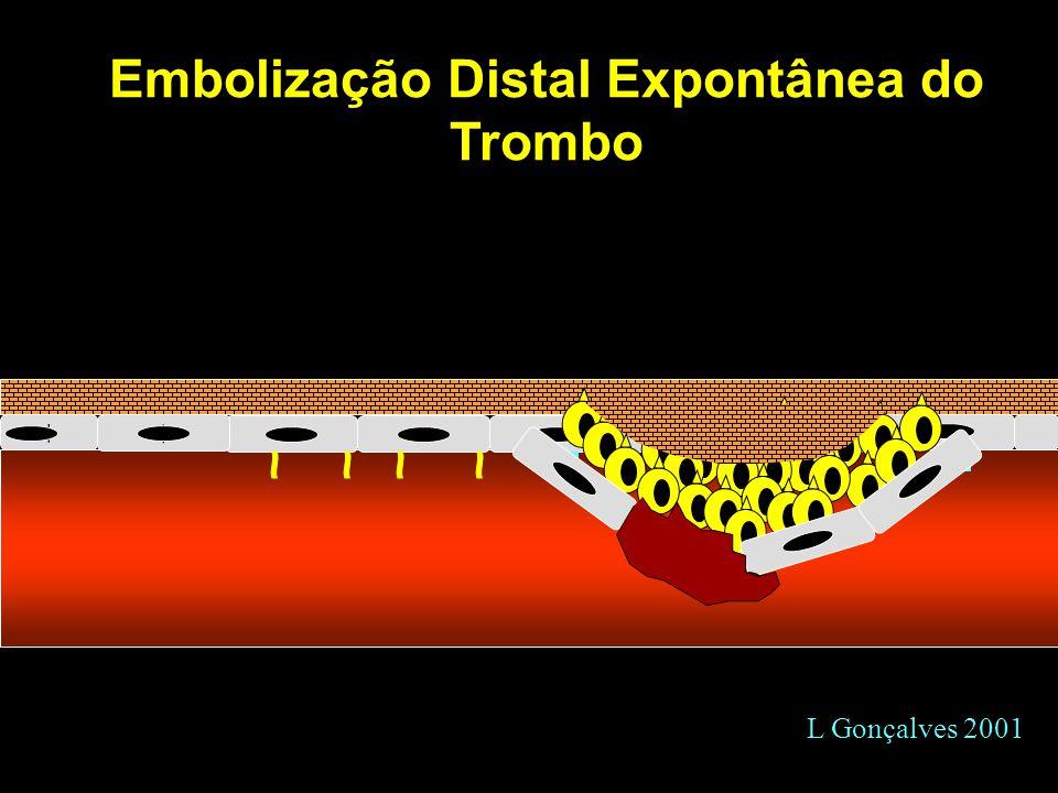Embolização Distal Expontânea do Trombo + + L Gonçalves 2001