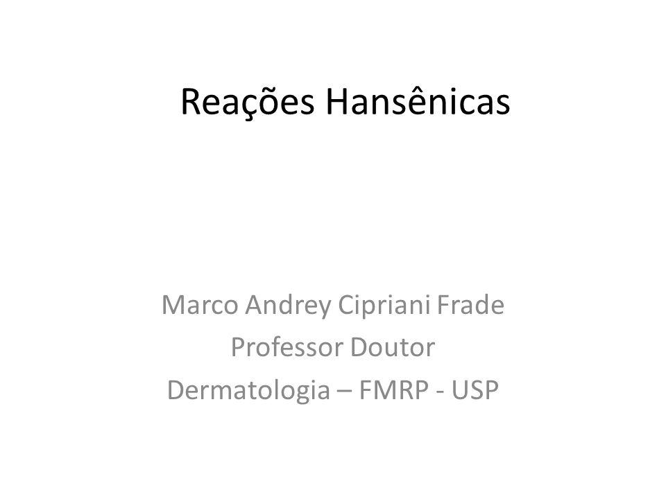 Reações Hansênicas Marco Andrey Cipriani Frade Professor Doutor Dermatologia – FMRP - USP