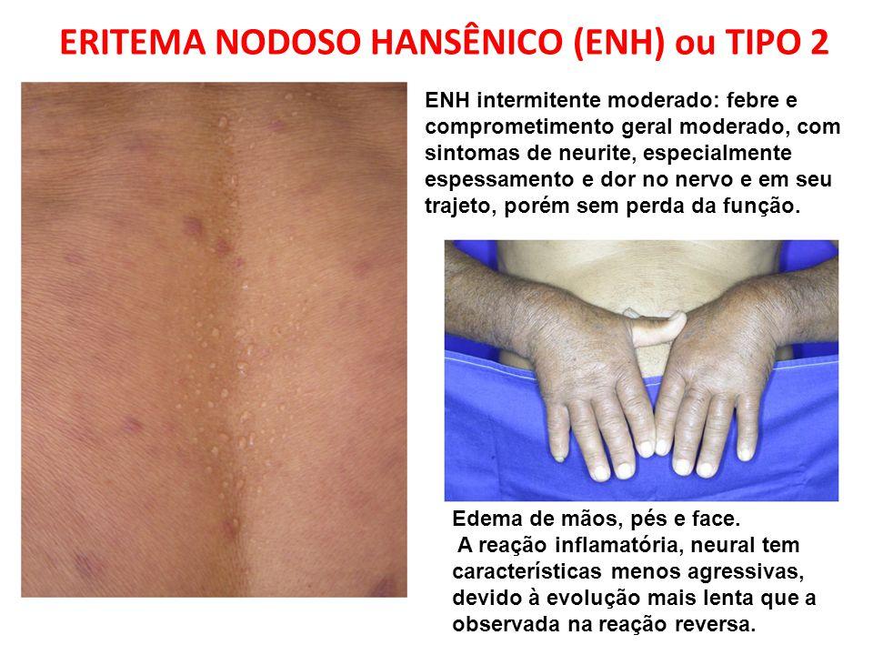 Edema de mãos, pés e face. A reação inflamatória, neural tem características menos agressivas, devido à evolução mais lenta que a observada na reação