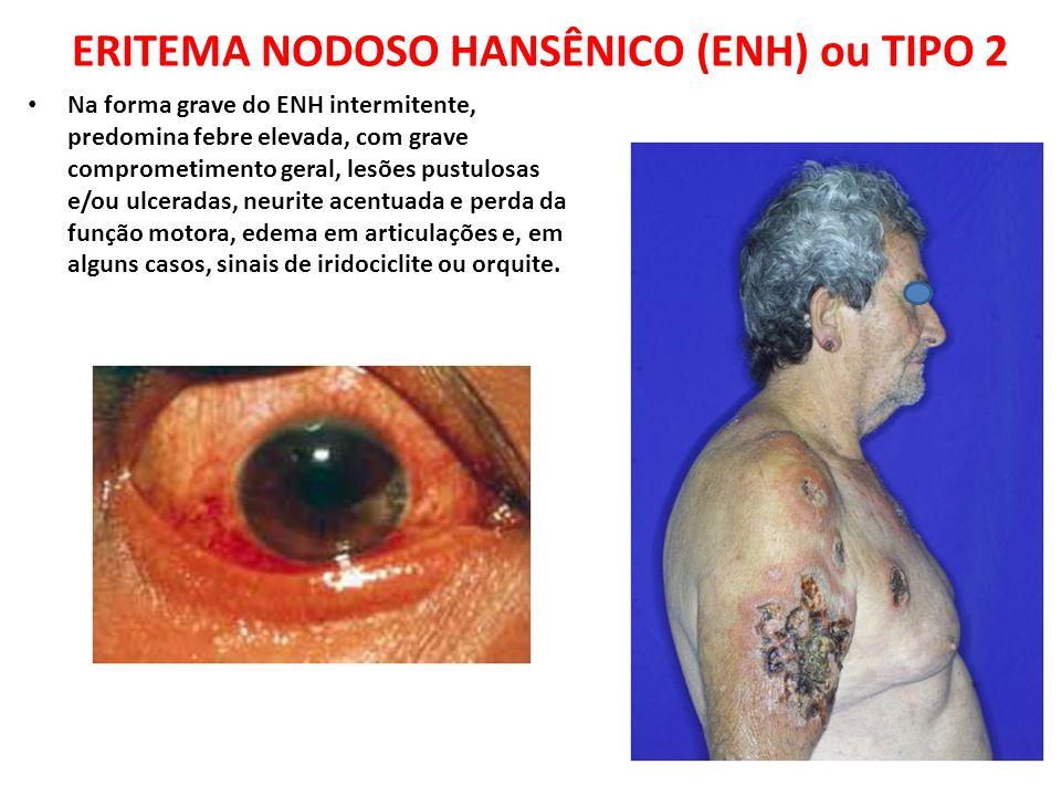Na forma grave do ENH intermitente, predomina febre elevada, com grave comprometimento geral, lesões pustulosas e/ou ulceradas, neurite acentuada e pe