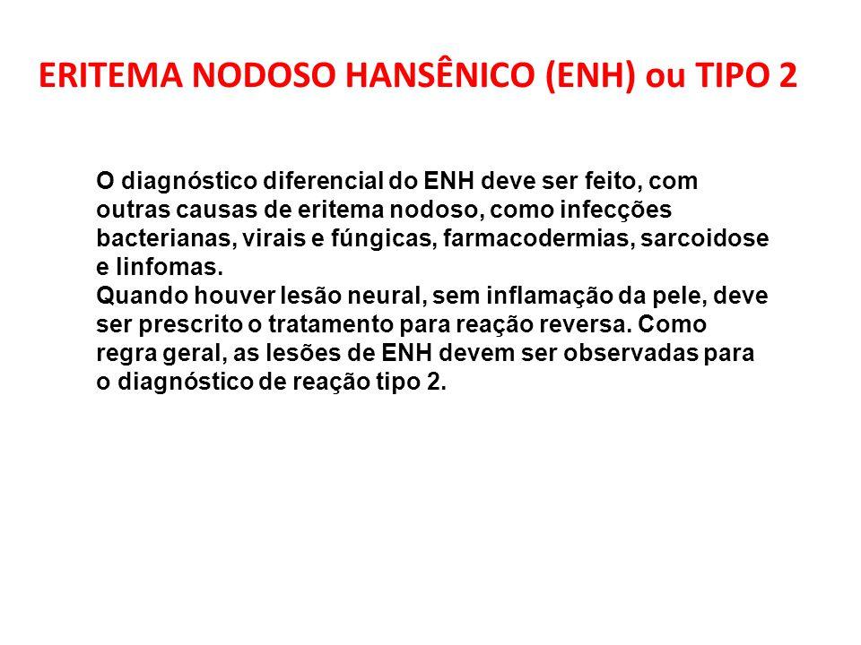 O diagnóstico diferencial do ENH deve ser feito, com outras causas de eritema nodoso, como infecções bacterianas, virais e fúngicas, farmacodermias, s