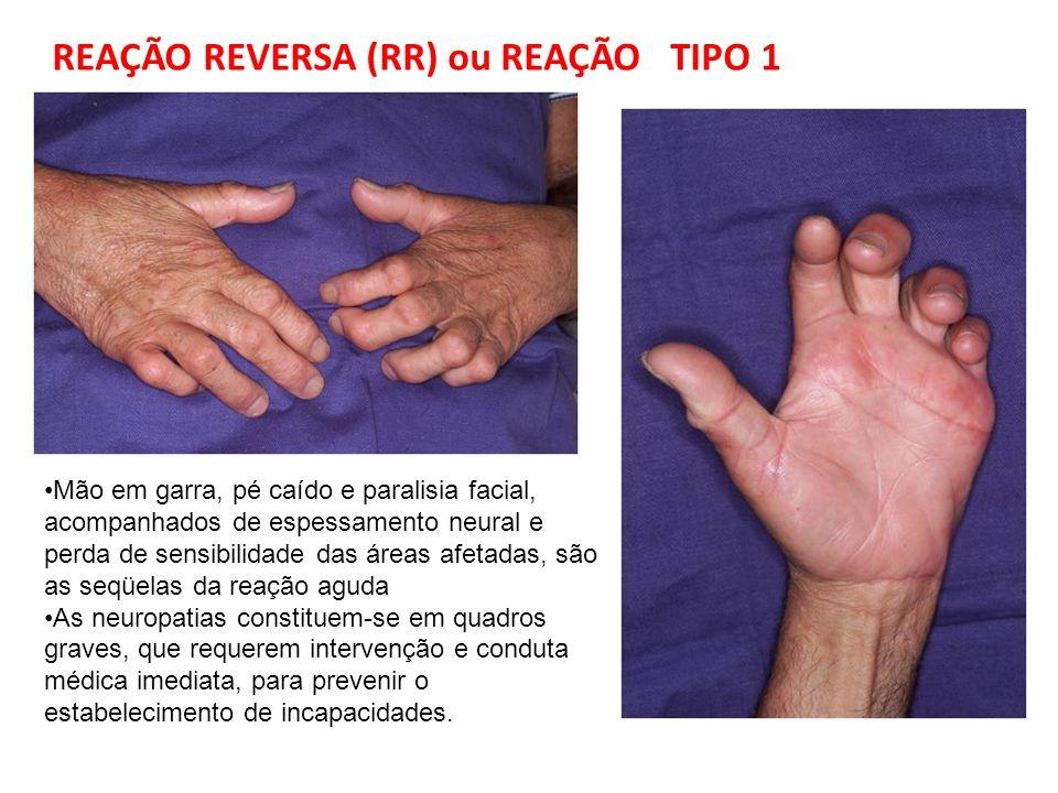 Mão em garra, pé caído e paralisia facial, acompanhados de espessamento neural e perda de sensibilidade das áreas afetadas, são as seqüelas da reação