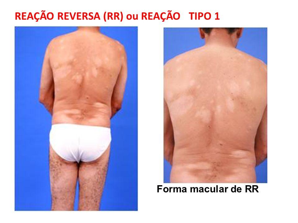 Forma macular de RR REAÇÃO REVERSA (RR) ou REAÇÃO TIPO 1