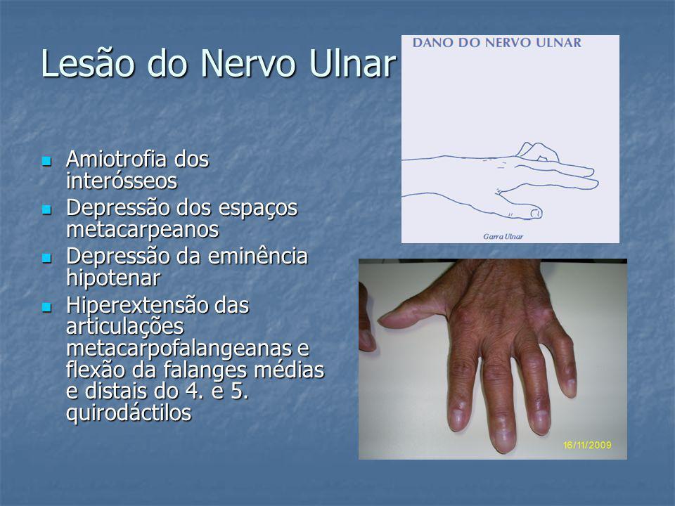 Lesão do Nervo Ulnar Amiotrofia dos interósseos Amiotrofia dos interósseos Depressão dos espaços metacarpeanos Depressão dos espaços metacarpeanos Dep