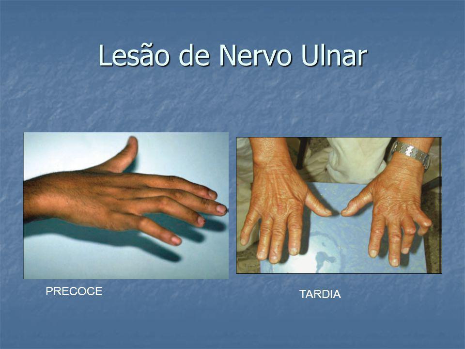 Lesão de Nervo Ulnar PRECOCE TARDIA