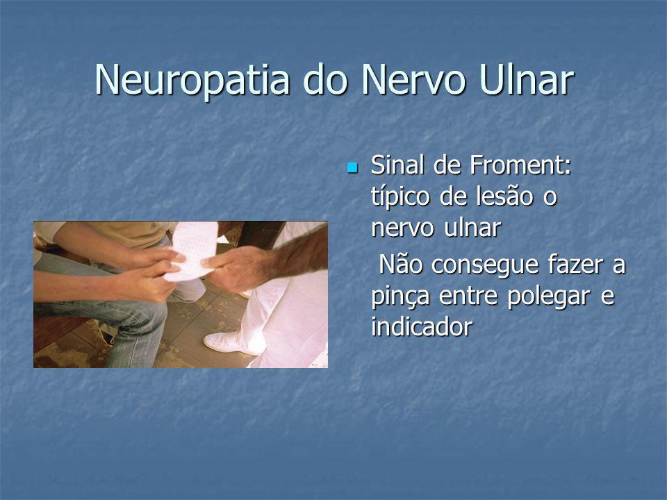 Neuropatia do Nervo Ulnar Sinal de Froment: típico de lesão o nervo ulnar Sinal de Froment: típico de lesão o nervo ulnar Não consegue fazer a pinça entre polegar e indicador Não consegue fazer a pinça entre polegar e indicador