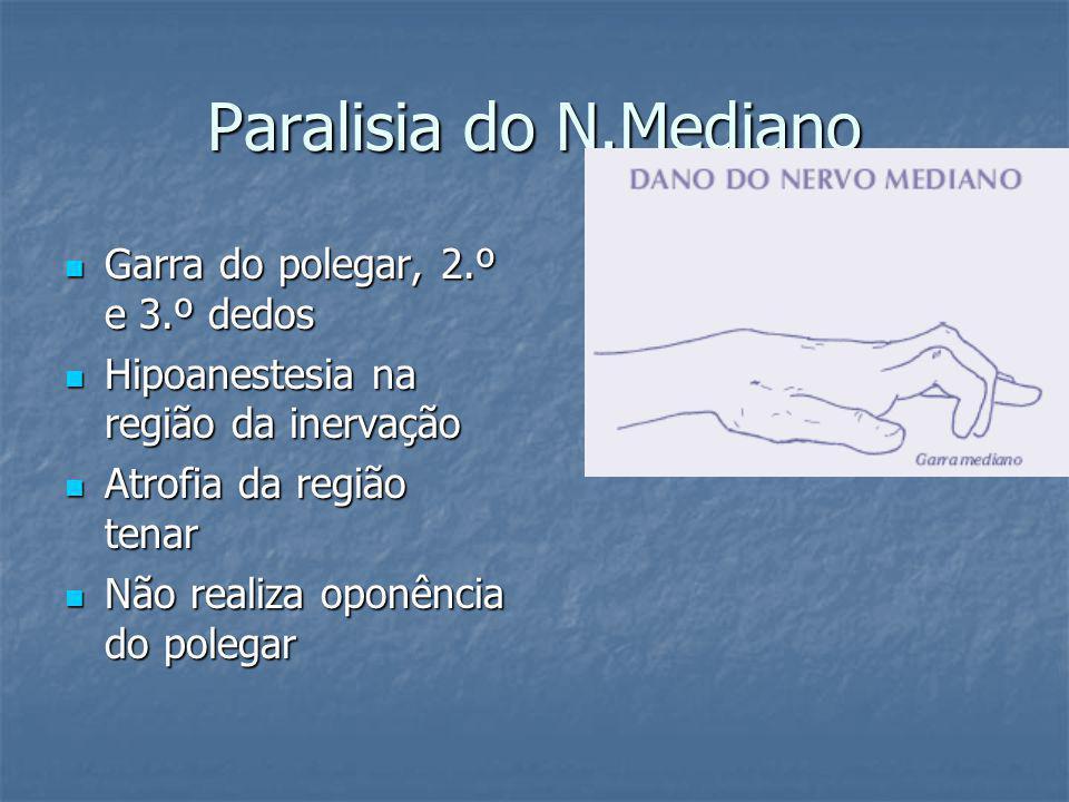 Paralisia do N.Mediano Garra do polegar, 2.º e 3.º dedos Garra do polegar, 2.º e 3.º dedos Hipoanestesia na região da inervação Hipoanestesia na região da inervação Atrofia da região tenar Atrofia da região tenar Não realiza oponência do polegar Não realiza oponência do polegar