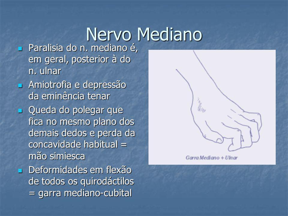 Nervo Mediano Paralisia do n. mediano é, em geral, posterior à do n. ulnar Paralisia do n. mediano é, em geral, posterior à do n. ulnar Amiotrofia e d