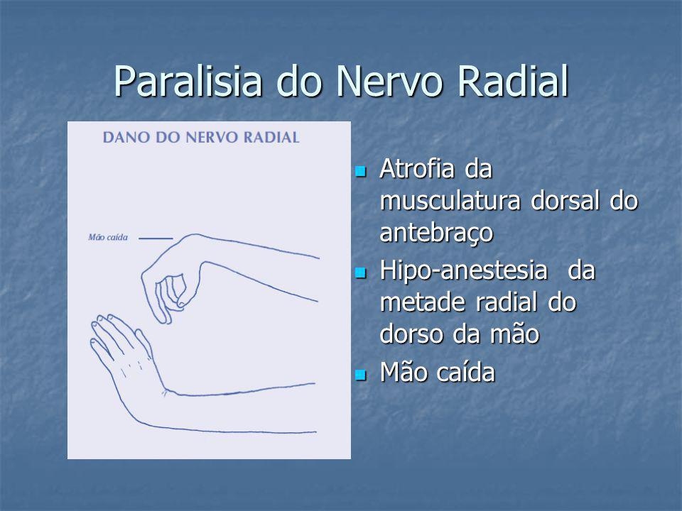 Paralisia do Nervo Radial Atrofia da musculatura dorsal do antebraço Atrofia da musculatura dorsal do antebraço Hipo-anestesia da metade radial do dorso da mão Hipo-anestesia da metade radial do dorso da mão Mão caída Mão caída