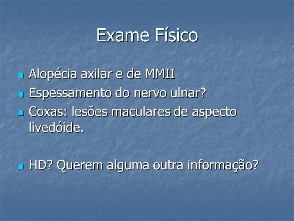Exame Físico Alopécia axilar e de MMII Alopécia axilar e de MMII Espessamento do nervo ulnar? Espessamento do nervo ulnar? Coxas: lesões maculares de