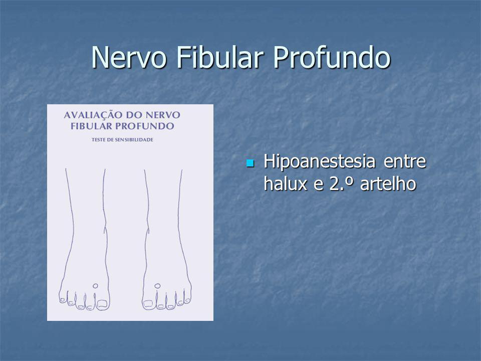 Nervo Fibular Profundo Hipoanestesia entre halux e 2.º artelho Hipoanestesia entre halux e 2.º artelho