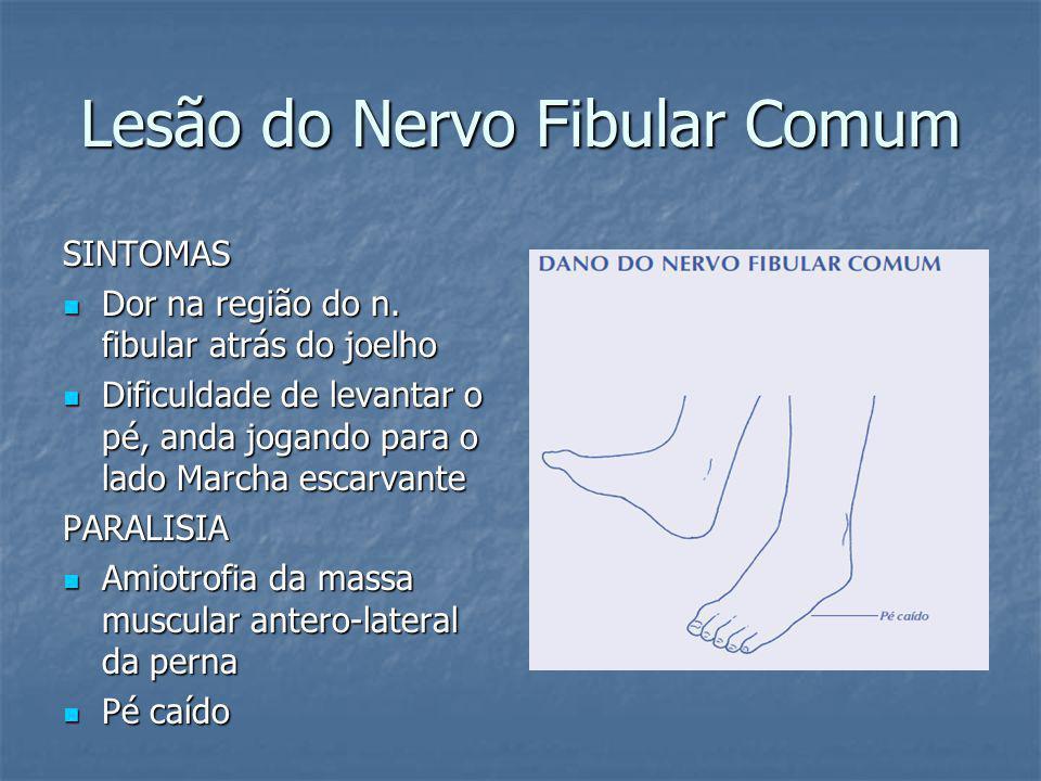 Lesão do Nervo Fibular Comum SINTOMAS Dor na região do n. fibular atrás do joelho Dor na região do n. fibular atrás do joelho Dificuldade de levantar
