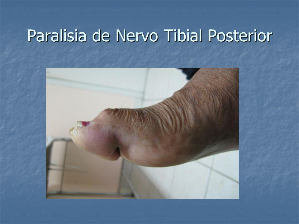 Paralisia de Nervo Tibial Posterior