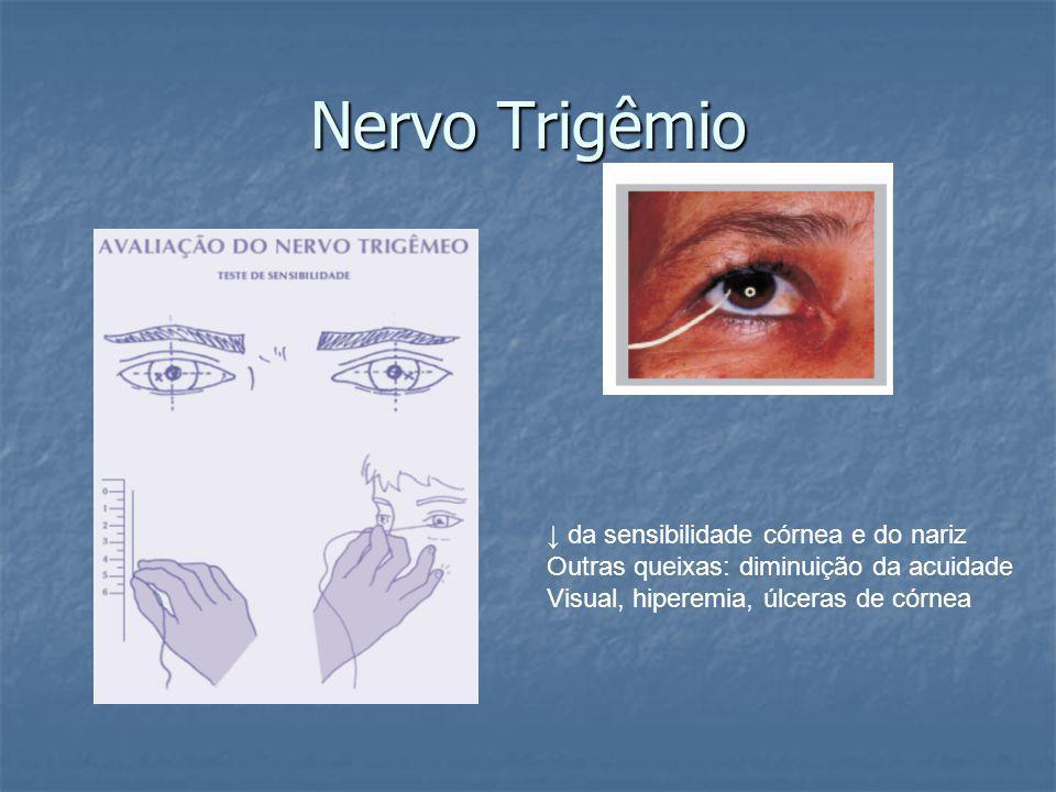 Nervo Trigêmio da sensibilidade córnea e do nariz Outras queixas: diminuição da acuidade Visual, hiperemia, úlceras de córnea