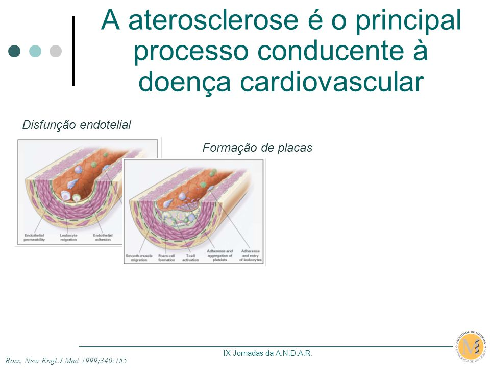 IX Jornadas da A.N.D.A.R. A aterosclerose é o principal processo conducente à doença cardiovascular Disfunção endotelial Formação de placas Ross, New