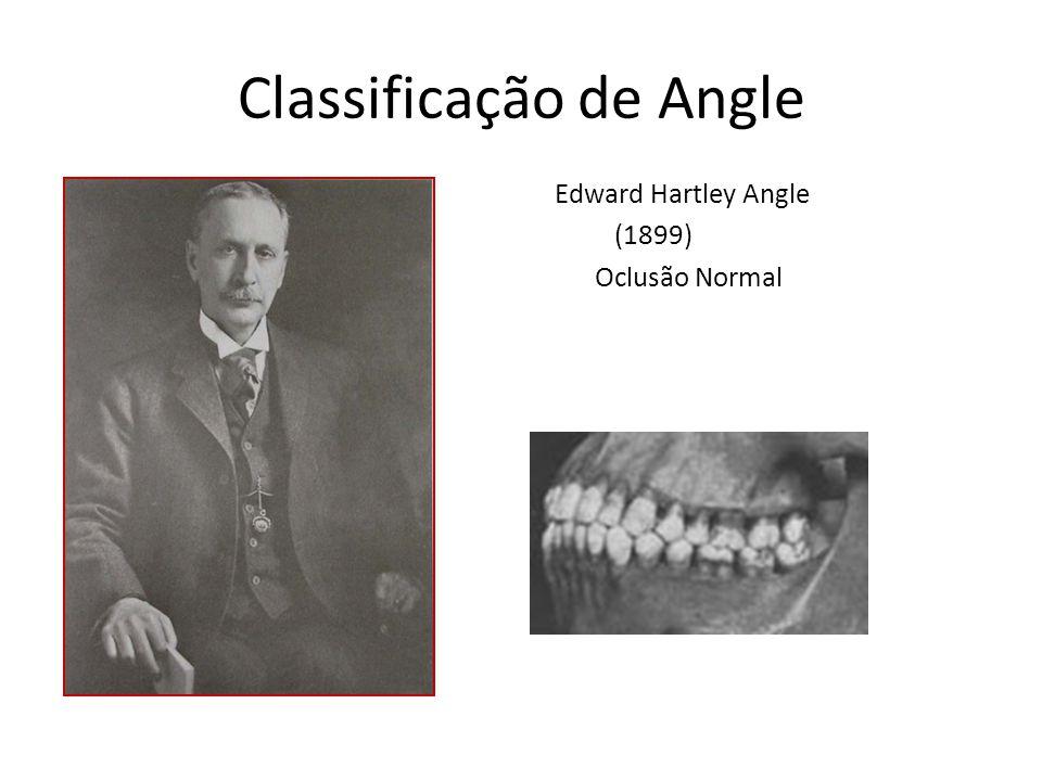 Classificação de Angle Edward Hartley Angle (1899) Oclusão Normal