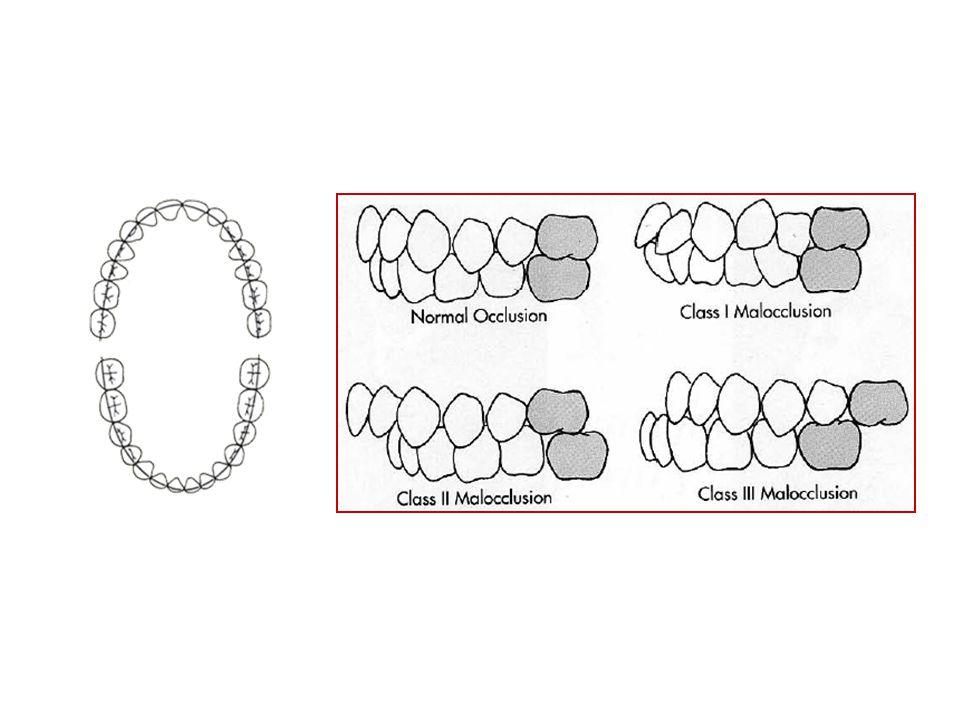 Oclusão Normal – Strang (1950) Complexo estrutural formado fundamentalmente por dentes e maxilares, caracterizado por uma relação normal dos planos inclinados oclusais dos dentes...