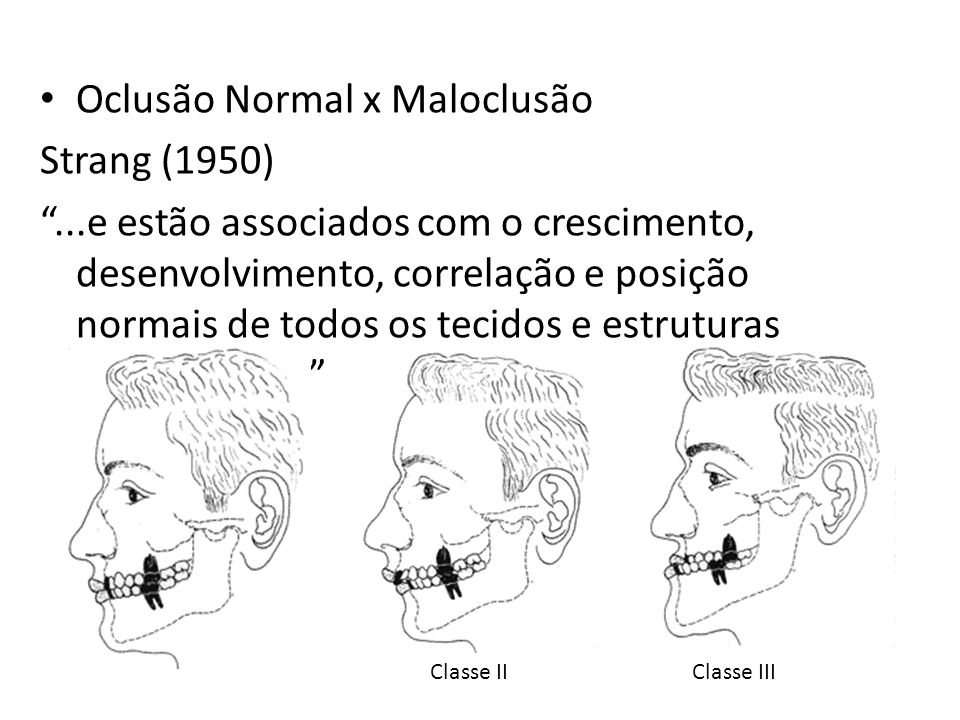 Oclusão Normal x Maloclusão Strang (1950)...e estão associados com o crescimento, desenvolvimento, correlação e posição normais de todos os tecidos e