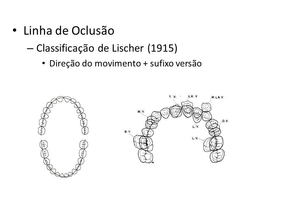 Linha de Oclusão – Classificação de Lischer (1915) Direção do movimento + sufixo versão