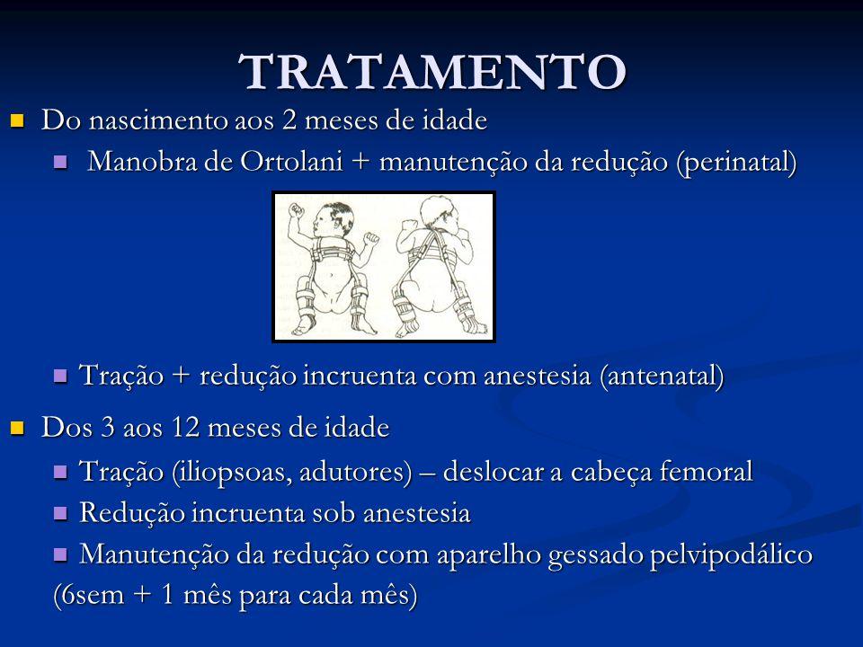 TRATAMENTO Do nascimento aos 2 meses de idade Do nascimento aos 2 meses de idade Manobra de Ortolani + manutenção da redução (perinatal) Manobra de Or