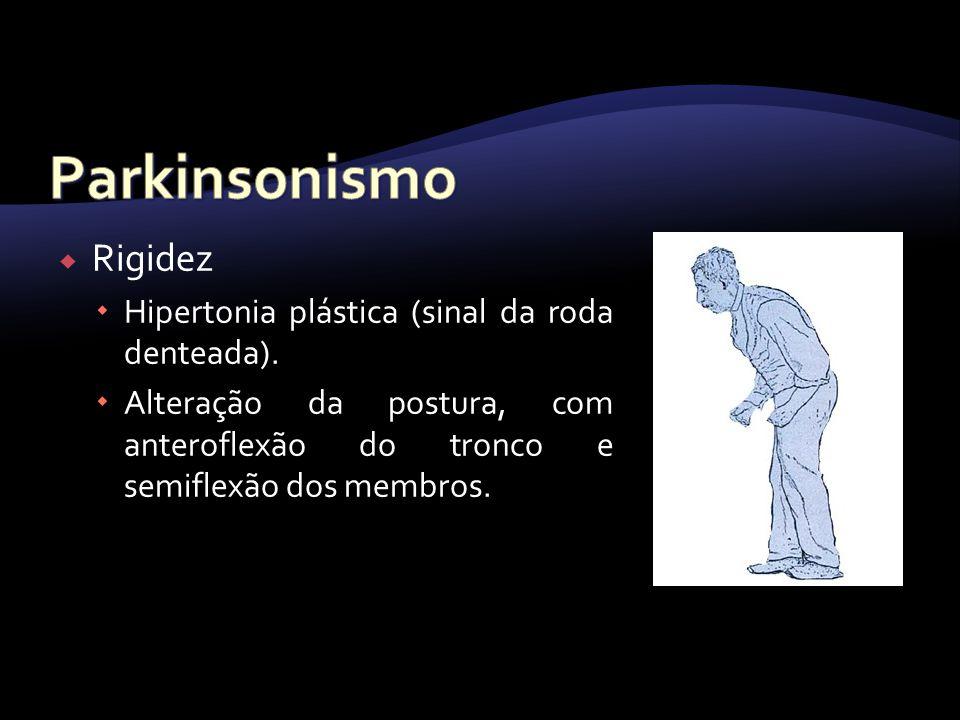 Rigidez Hipertonia plástica (sinal da roda denteada). Alteração da postura, com anteroflexão do tronco e semiflexão dos membros.