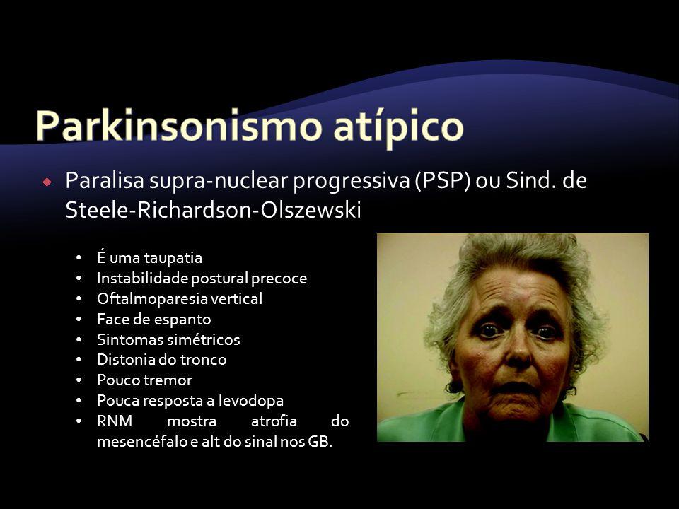 Paralisa supra-nuclear progressiva (PSP) ou Sind. de Steele-Richardson-Olszewski É uma taupatia Instabilidade postural precoce Oftalmoparesia vertical