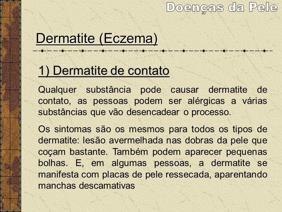 Dermatite (Eczema) 1) Dermatite de contato Qualquer substância pode causar dermatite de contato, as pessoas podem ser alérgicas a várias substâncias q