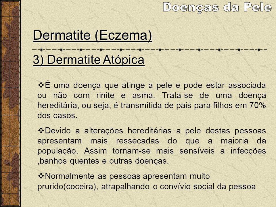 Dermatite (Eczema) 3) Dermatite Atópica É uma doença que atinge a pele e pode estar associada ou não com rinite e asma. Trata-se de uma doença heredit