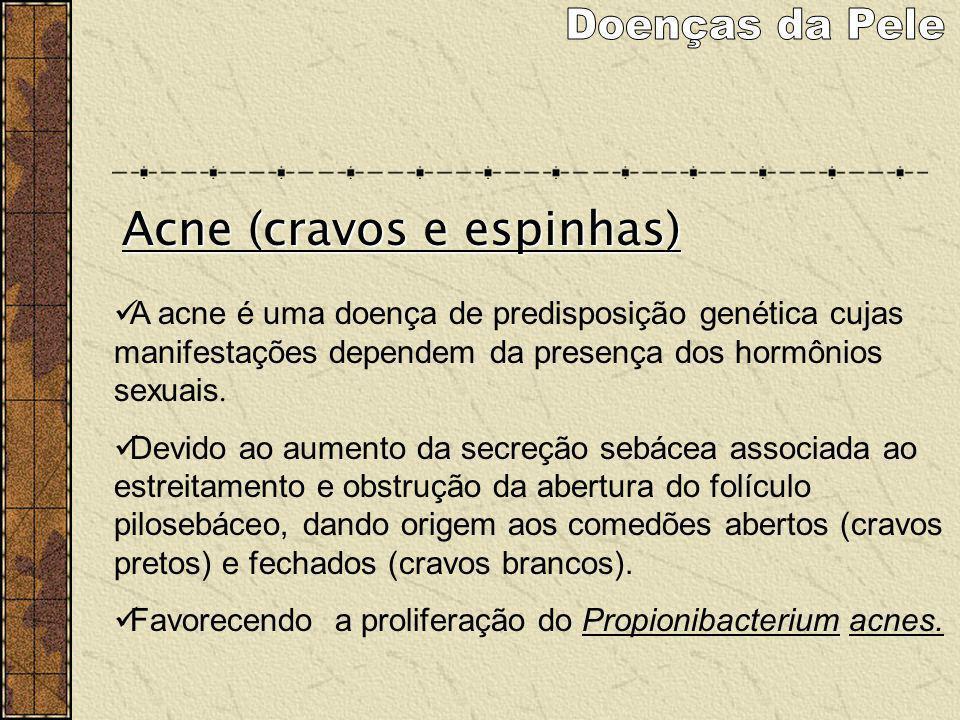 A acne é uma doença de predisposição genética cujas manifestações dependem da presença dos hormônios sexuais. Devido ao aumento da secreção sebácea as