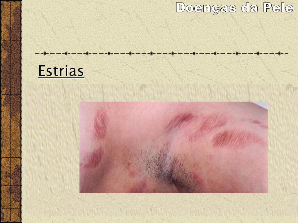 Estrias As estrias atróficas são lesões decorrentes da degeneração das fibras elásticas da pele que ocorrem por sua distensão exagerada ou devido a al