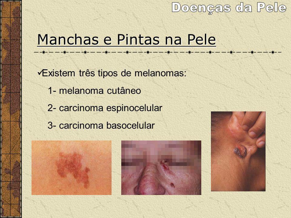 Manchas e Pintas na Pele Existem três tipos de melanomas: 1- melanoma cutâneo 2- carcinoma espinocelular 3- carcinoma basocelular