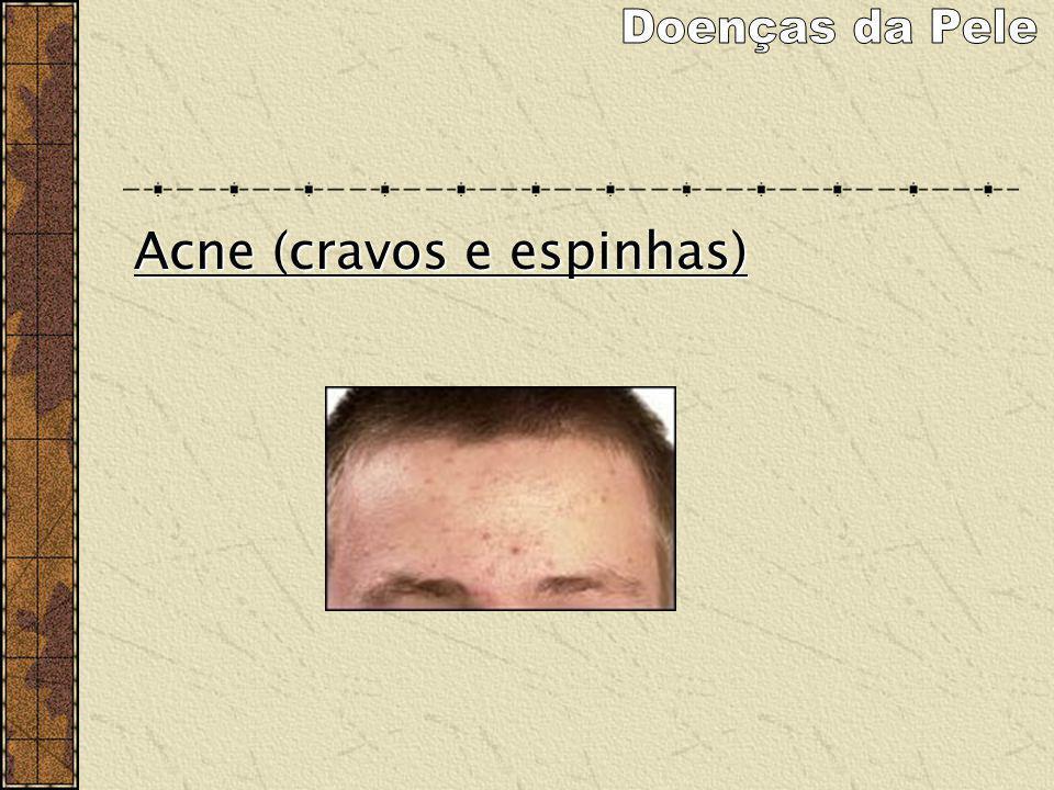 Acne (cravos e espinhas)