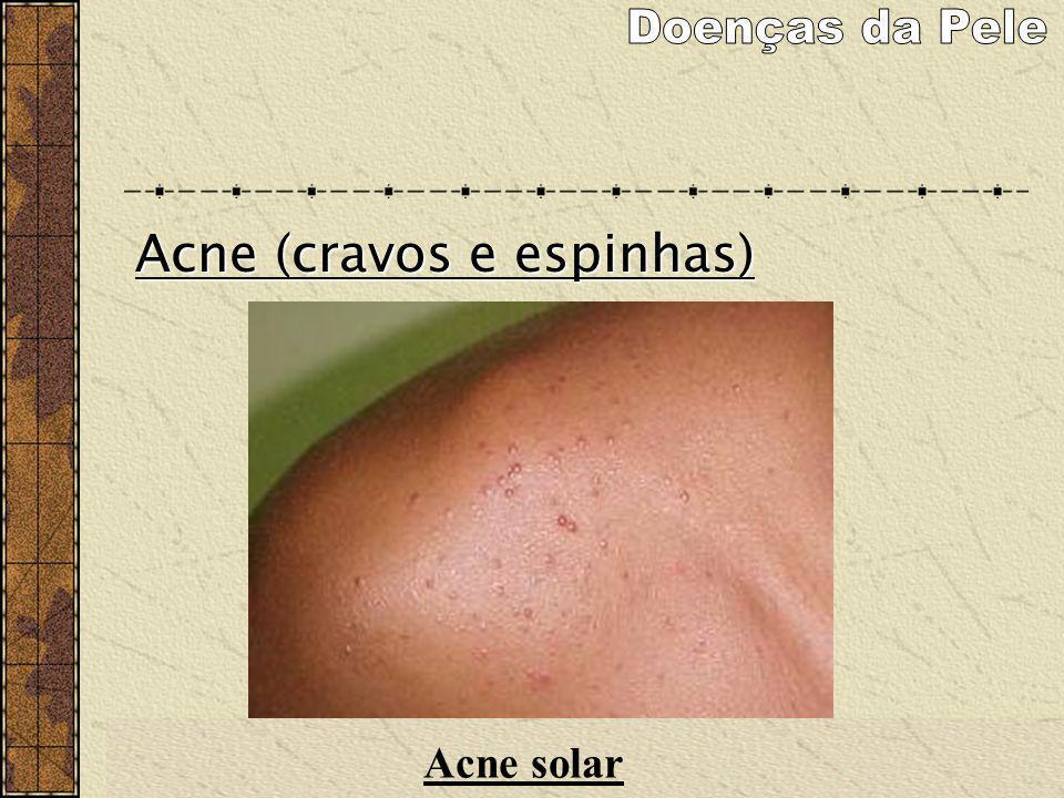 Acne (cravos e espinhas) Acne solar