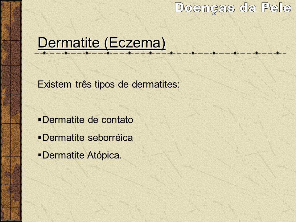 Dermatite (Eczema) Existem três tipos de dermatites: Dermatite de contato Dermatite seborréica Dermatite Atópica.