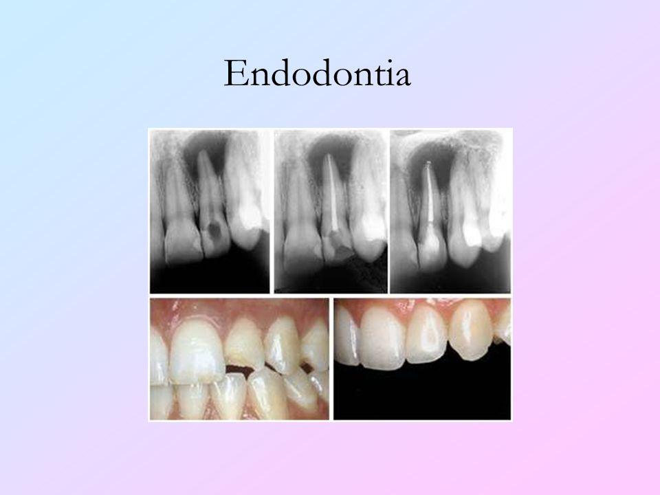Endodontia Esta especialidade refere-se ao tratamento de canal dos dentes acometidos por cáries profundas. Pode-se fazer também o retratamento de cana