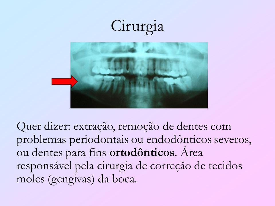 Cirurgia Quer dizer: extração, remoção de dentes com problemas periodontais ou endodônticos severos, ou dentes para fins ortodônticos. Área responsáve