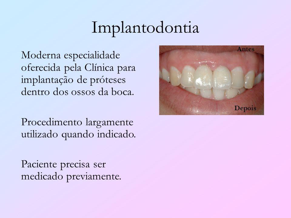 Implantodontia Moderna especialidade oferecida pela Clínica para implantação de próteses dentro dos ossos da boca. Procedimento largamente utilizado q