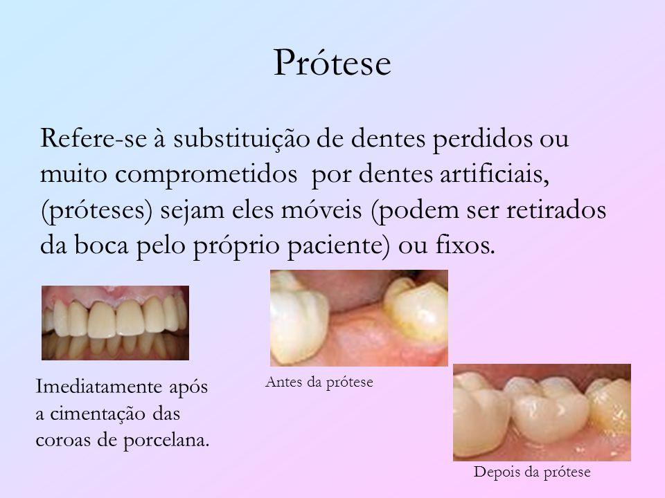 Prótese Refere-se à substituição de dentes perdidos ou muito comprometidos por dentes artificiais, (próteses) sejam eles móveis (podem ser retirados d
