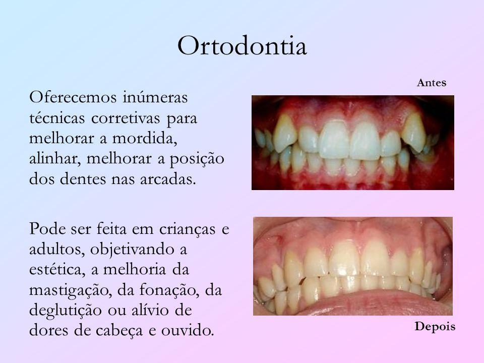 Ortodontia Oferecemos inúmeras técnicas corretivas para melhorar a mordida, alinhar, melhorar a posição dos dentes nas arcadas. Pode ser feita em cria