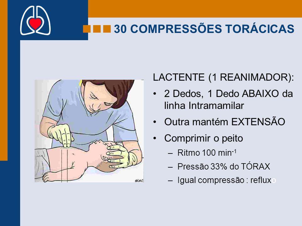 LACTENTE (1 REANIMADOR): 2 Dedos, 1 Dedo ABAIXO da linha Intramamilar Outra mantém EXTENSÃO Comprimir o peito –Ritmo 100 min -1 –Pressão 33% do TÓRAX