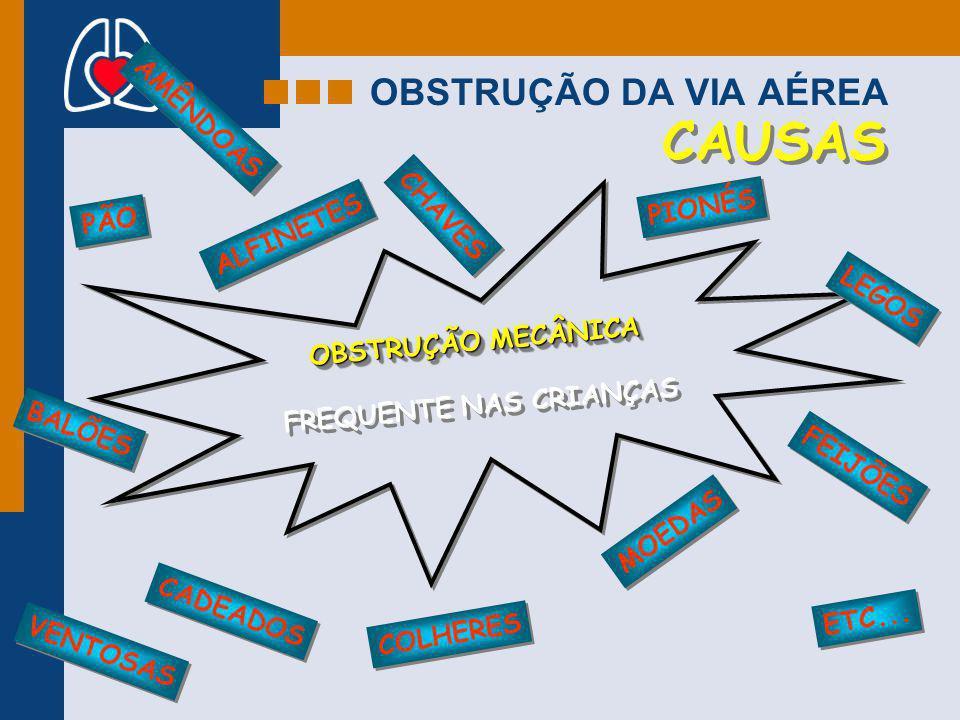 OBSTRUÇÃO DA VIA AÉREA CAUSAS ALFINETES CADEADOS MOEDAS OBSTRUÇÃO MECÂNICA FREQUENTE NAS CRIANÇAS OBSTRUÇÃO MECÂNICA FREQUENTE NAS CRIANÇAS LEGOS COLH