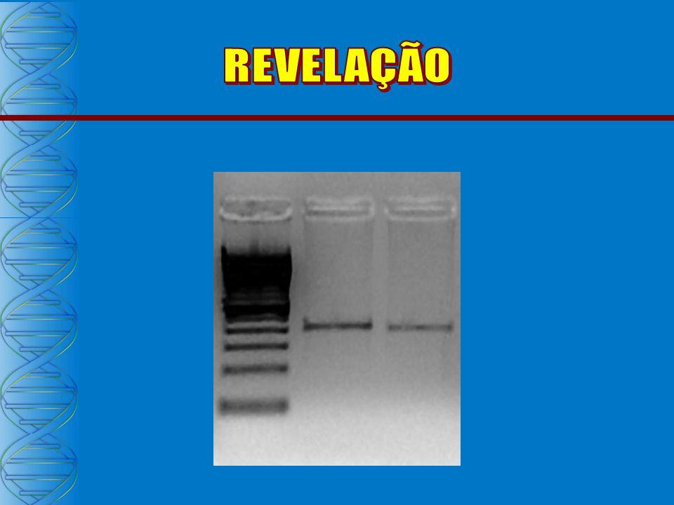 PRODUTO DA PCR NESTED PCR PR NESTED PCR TR