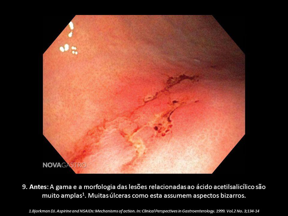 9. Antes: A gama e a morfologia das lesões relacionadas ao ácido acetilsalicílico são muito amplas 1. Muitas úlceras como esta assumem aspectos bizarr