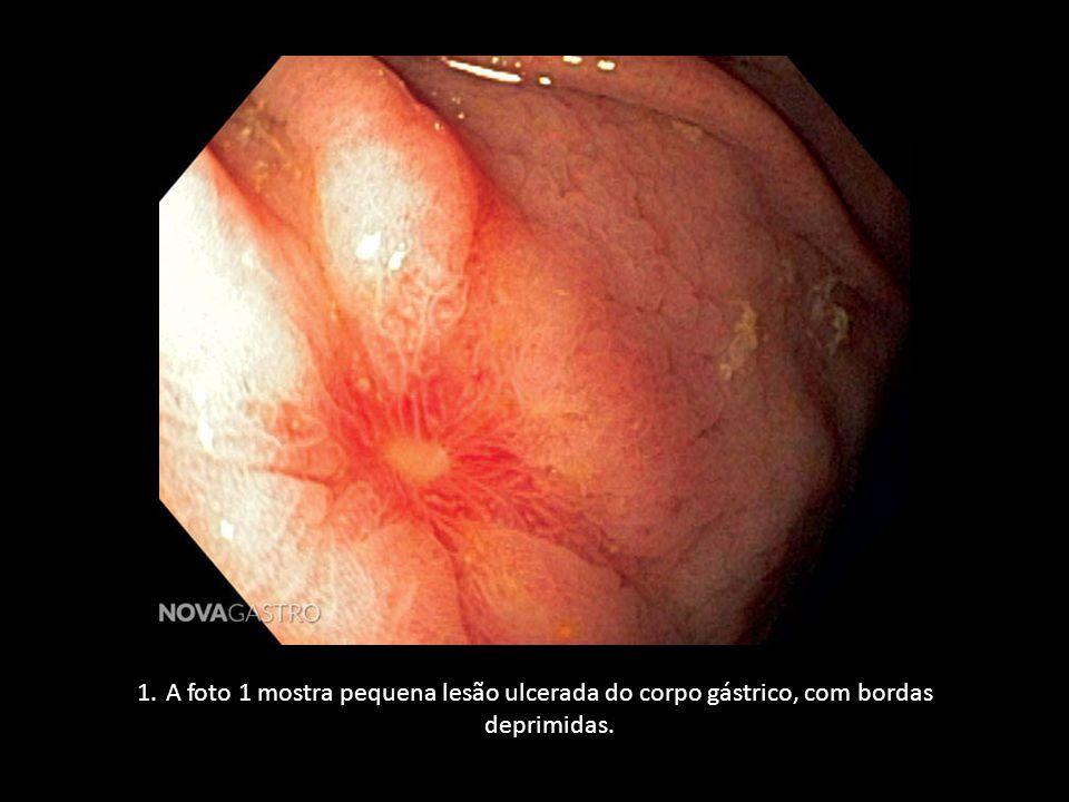 1.A foto 1 mostra pequena lesão ulcerada do corpo gástrico, com bordas deprimidas.