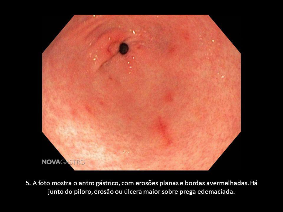 5. A foto mostra o antro gástrico, com erosões planas e bordas avermelhadas. Há junto do piloro, erosão ou úlcera maior sobre prega edemaciada.